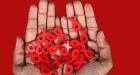 AIDS u porastu na granici Europe i Azije: Svaki stoti Rus zaražen